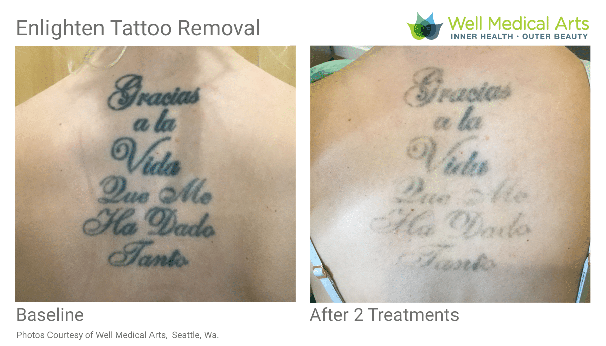Tattoo Removal Before And After, 2 Treatments On Back Tattoo