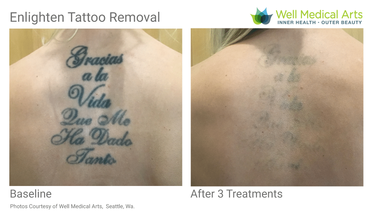 Tattoo Removal Before And After, 3 Treatments On Back Tattoo
