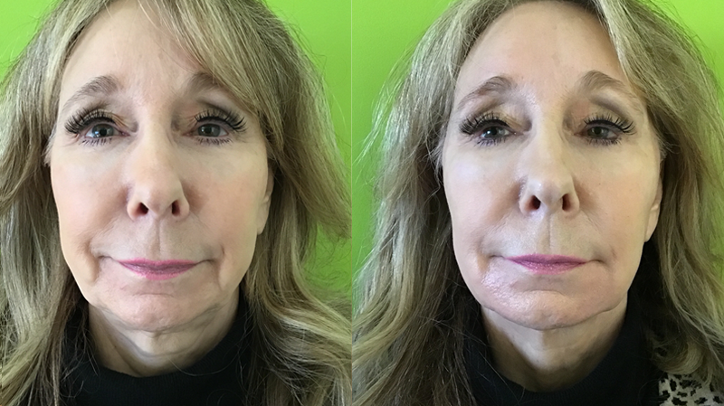 Lower Liquid Facelift Using Bellafill At Well Medical Arts In Seattle