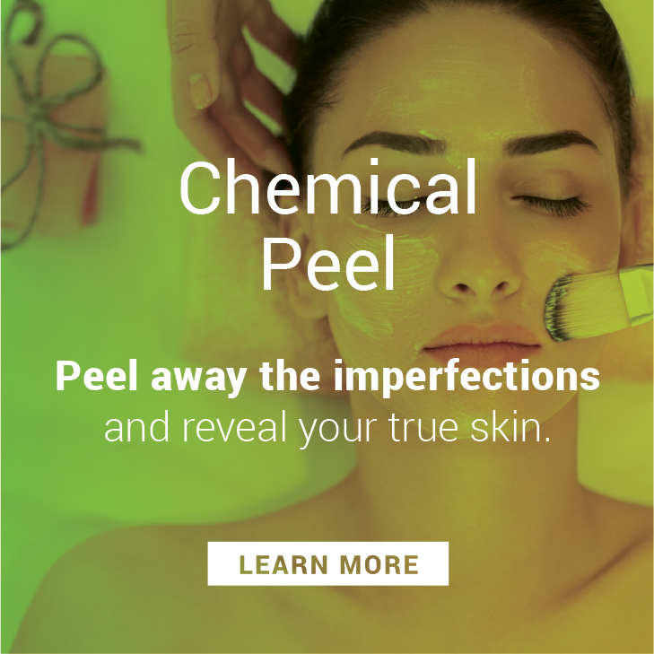 Chemical Peels are a great way to exfoliate and keep your skin looking fresh.