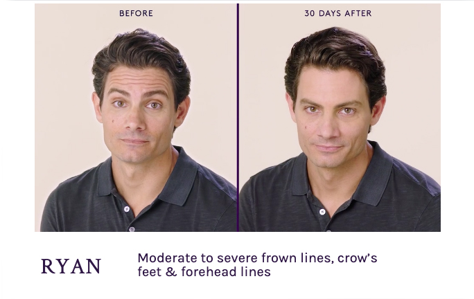 Before and After Botox for Men. Frown and forehead Lines Seattle