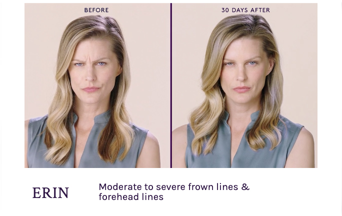 Before and After Botox Frown Lines Seattle