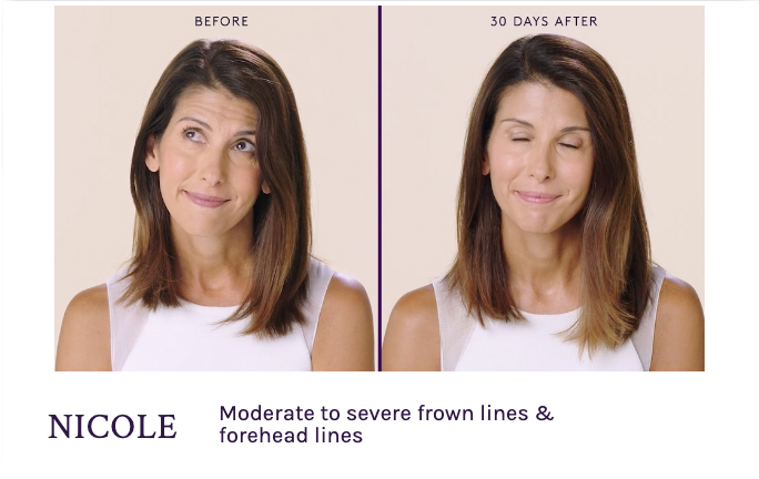 Before and After Botox Frown Lines and Forehead Lines in Seattle at Well Medical Arts.