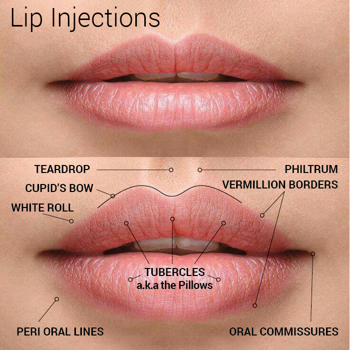 Lip Filler Injections in Seattle at Well Medical Arts.