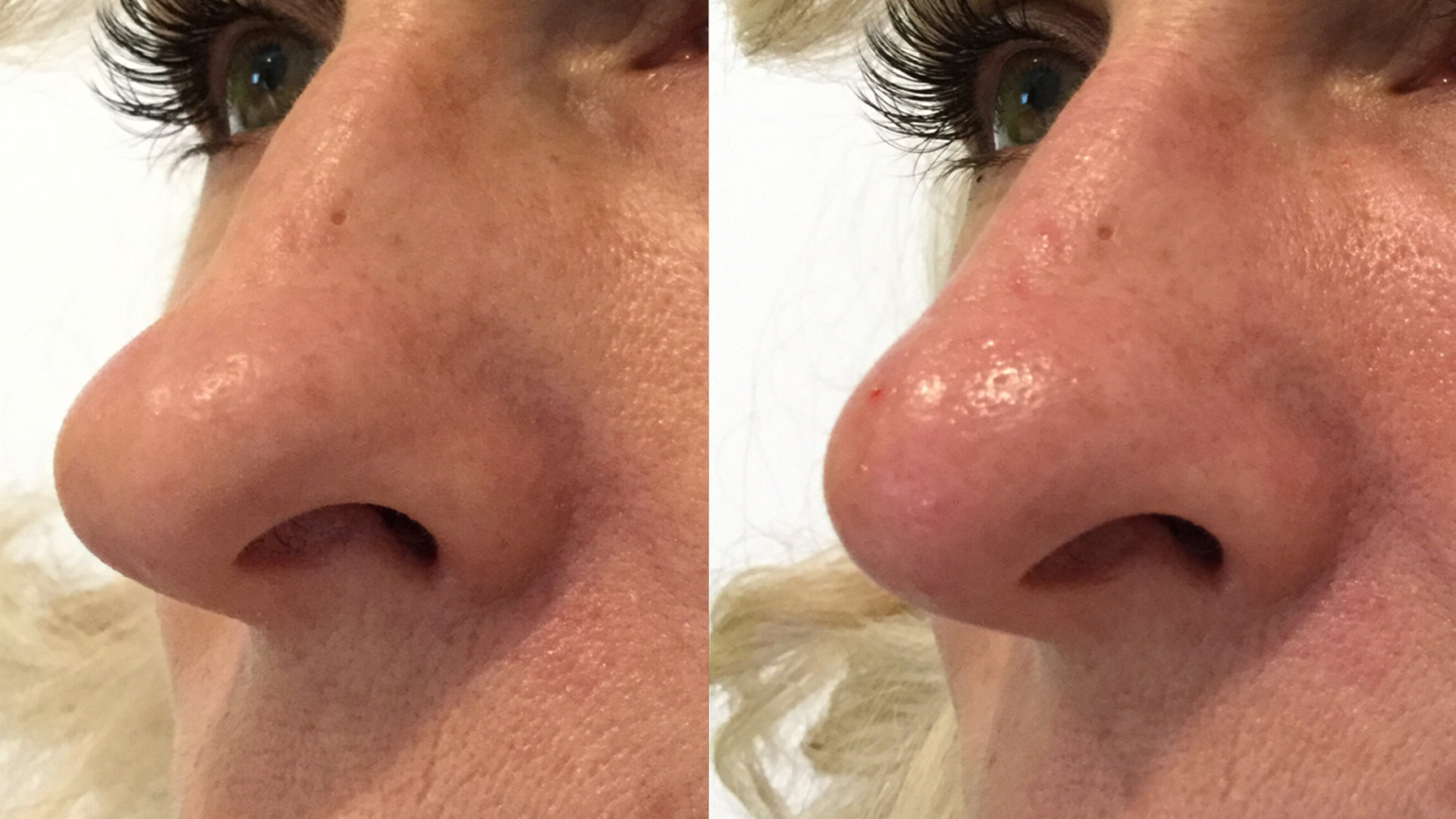Non Surgical Rhinoplasty, No Downtime And Instant Results Using Bellafill At Well Medical Arts. Learn More About The Non Surgical Nose Job At Non Surgical Rhinoplasty
