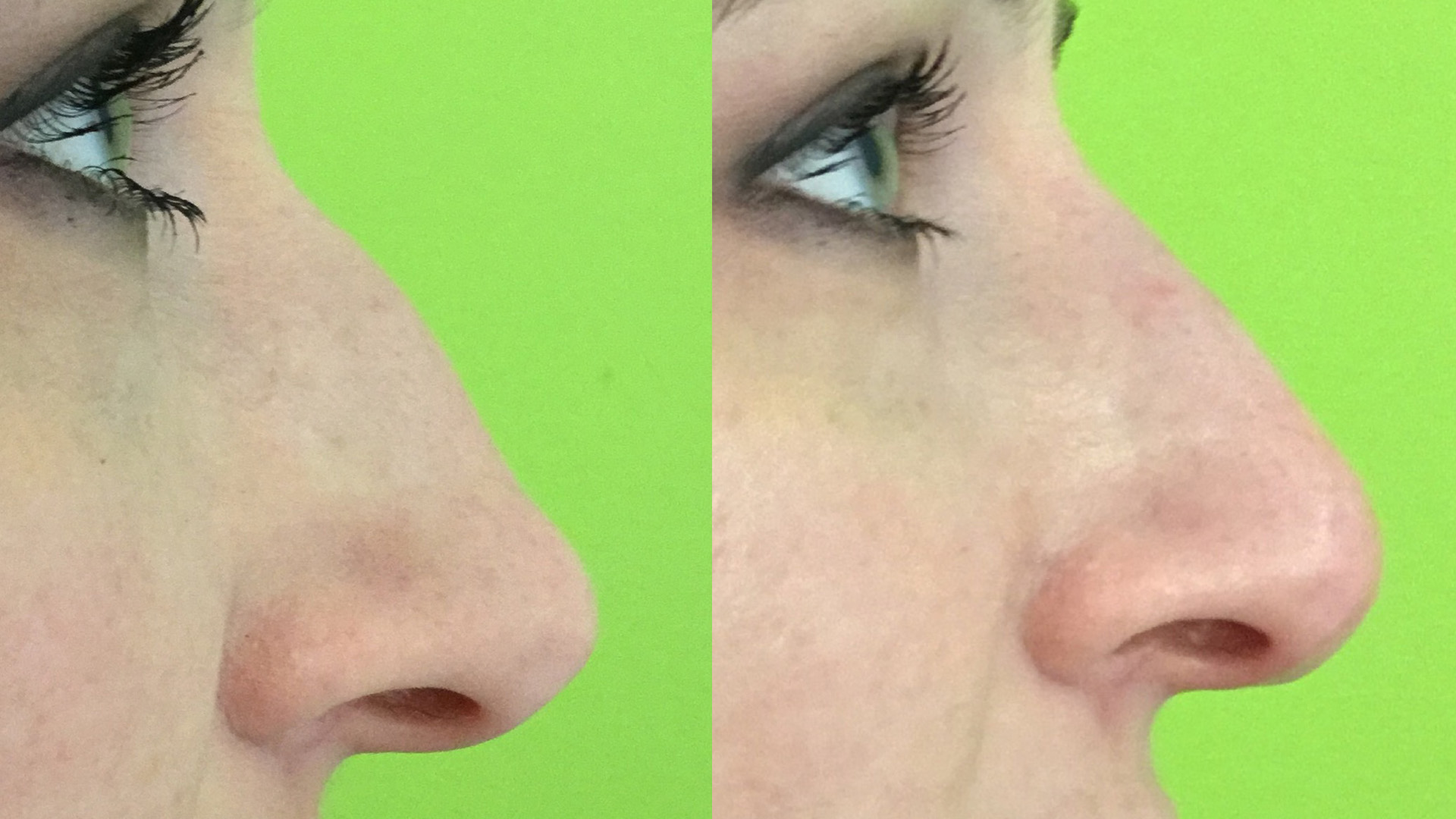 Non Surgical Nose Job With Dermal Filler At Well Medical Arts.