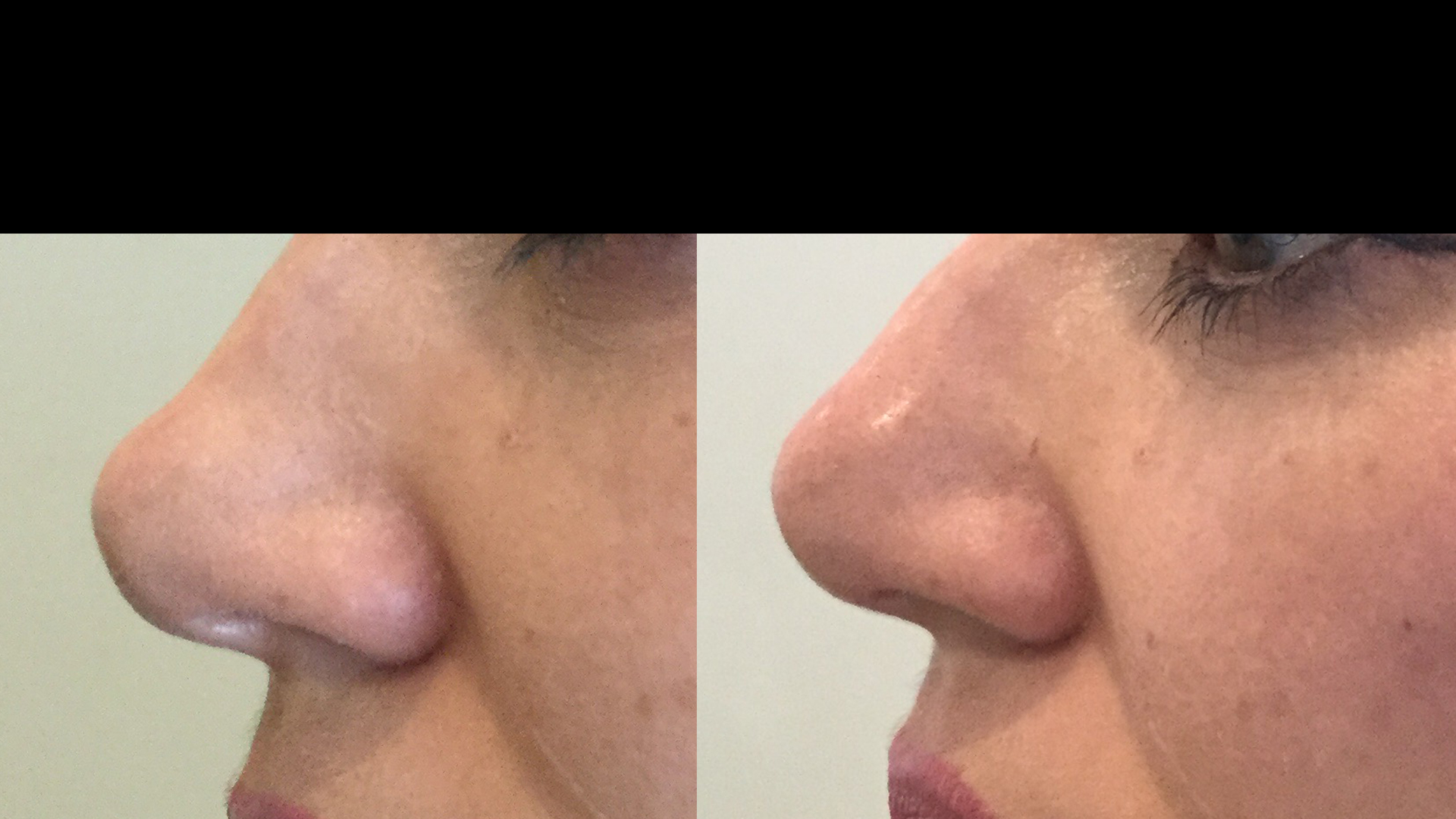 Non Surgical Rhinoplasty Using Dermal Fillers At Well Medical Arts. Learn More About The Non Surgical Nose Job At Non Surgical Rhinoplasty