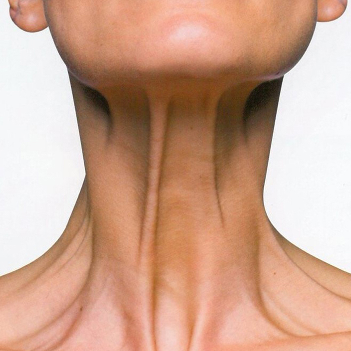 Use Botox to tighten the neck by treating the platysmal bands.