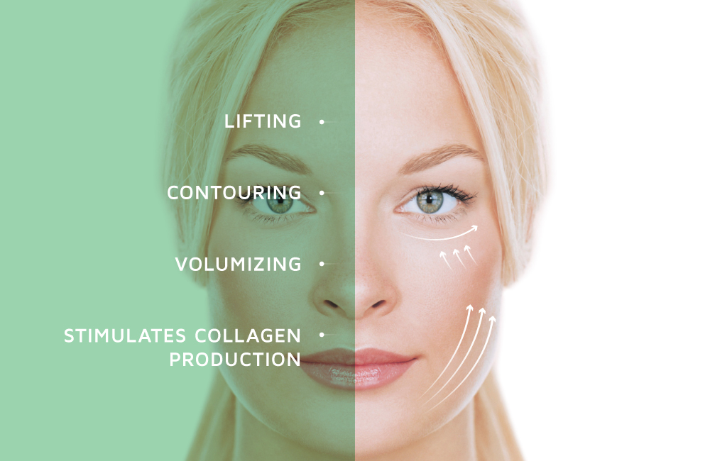 Lift, contour and stimulate collagen with a thread lift treatment at Well Medical Arts in Seattle. Call206-935-5689 to learn more. www.wellmedicalarts.com