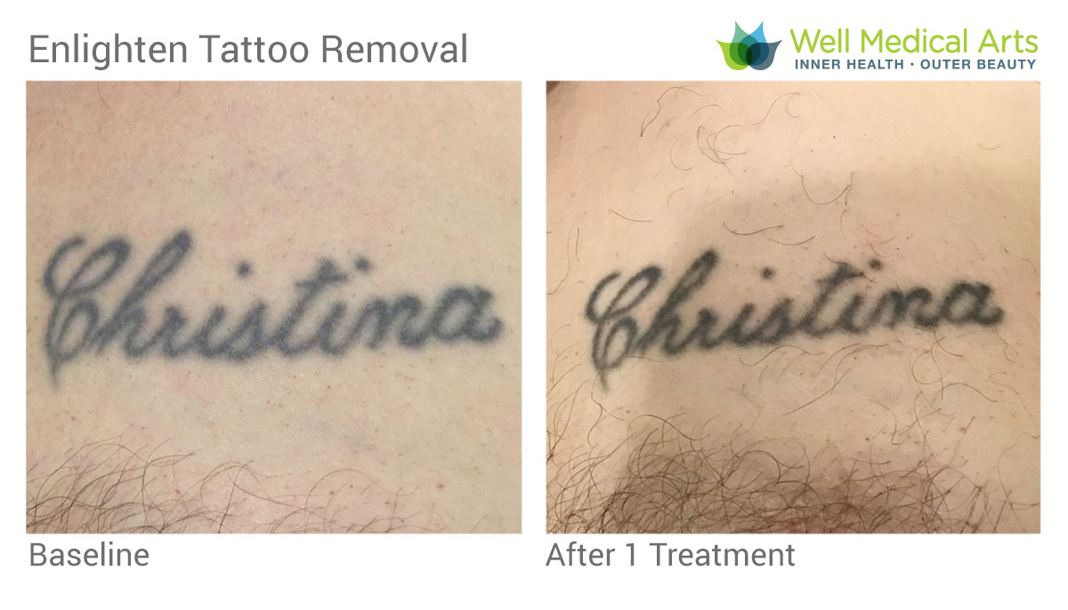 Laser Tattoo Removal Using The Cutera Enlighten In Seattle At Well Medical Arts Post 1 Treatment