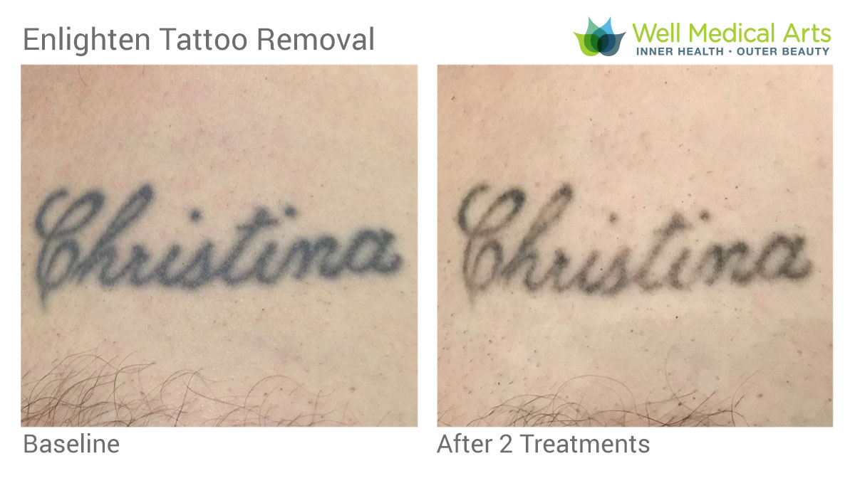 Tattoo Removal In Seattle At Well Medical Arts Before And After JR 2 Treatments