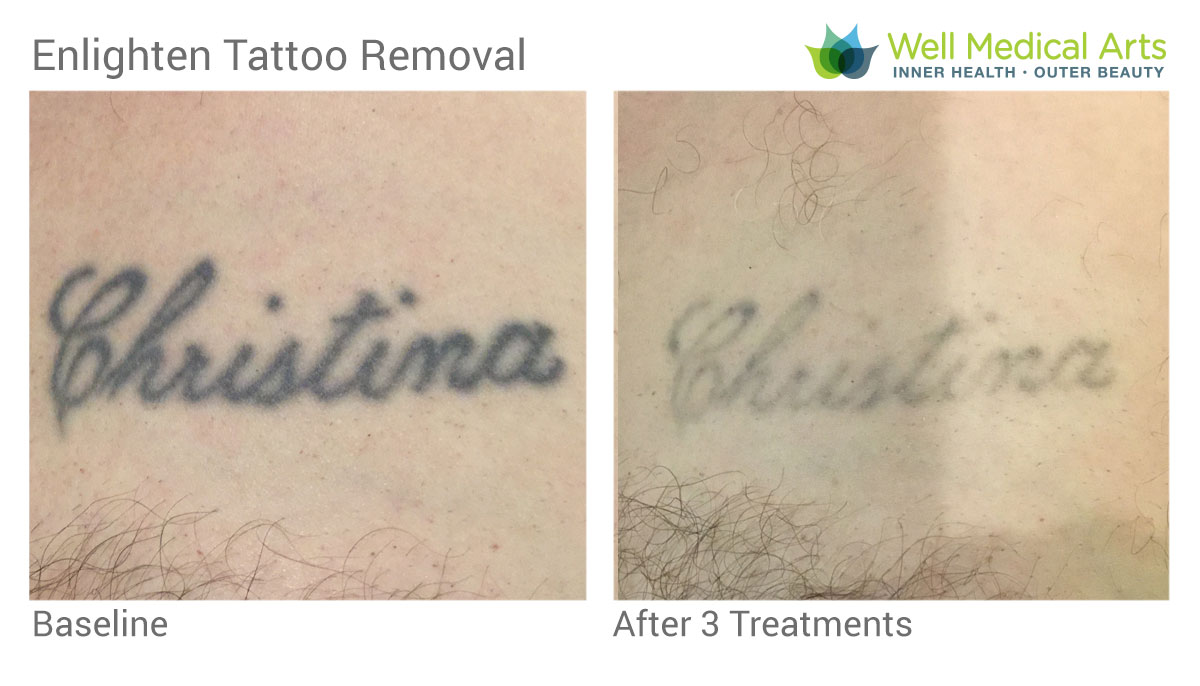 Laser Tattoo Removal Using The Cutera Enlighten In Seattle At Well Medical Arts Post 3 Treatments