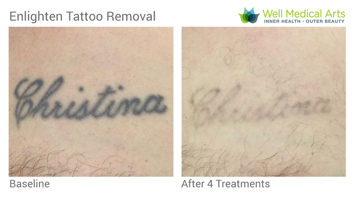 Laser Tattoo Removal Using The Cutera Enlighten In Seattle At Well Medical Arts Post 4 Treatments