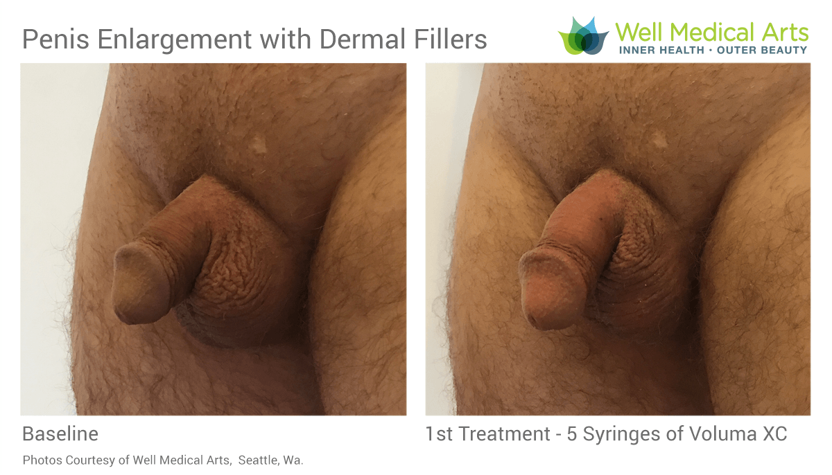 Penis Enlargement Before and after 1st Treatment