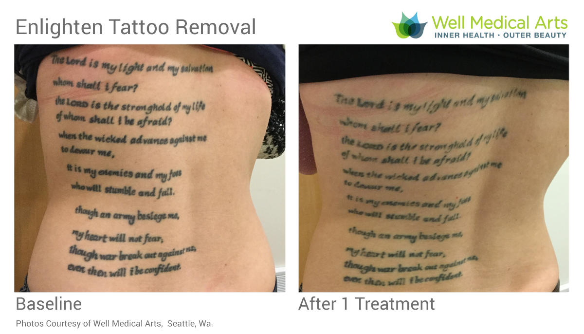 Seattle Laser Tattoo Removal Before And After - BS Treatment 1