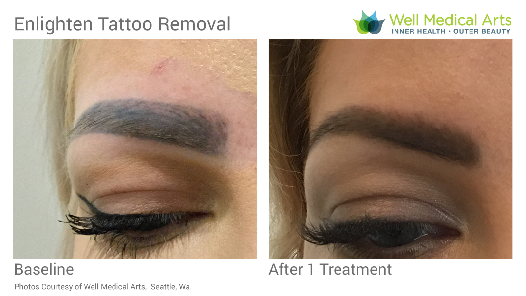Eyebrow Tattoo Removal Seattle Well Medical Arts Before After