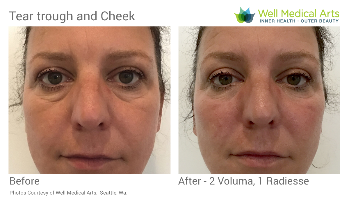 Dominique demonstrates another example of a combination Tear Trough and Cheek treatment. Filling the tear trough helps to make people look healthy and well rested and minimizes black bags under the eyes. Replacing volume loss in the cheeks helps to lift the lower face and also helps with the tear troughs making it require less filler in the actual teat trough which is one of the most delicate areas of the face.