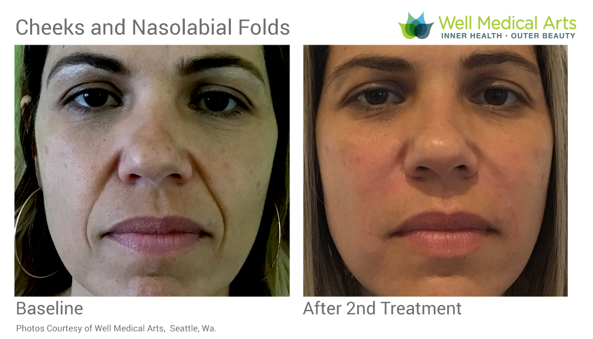 Nasolabial fold (smile lines) and cheek before and after at Well Medica Arts in Seattle
