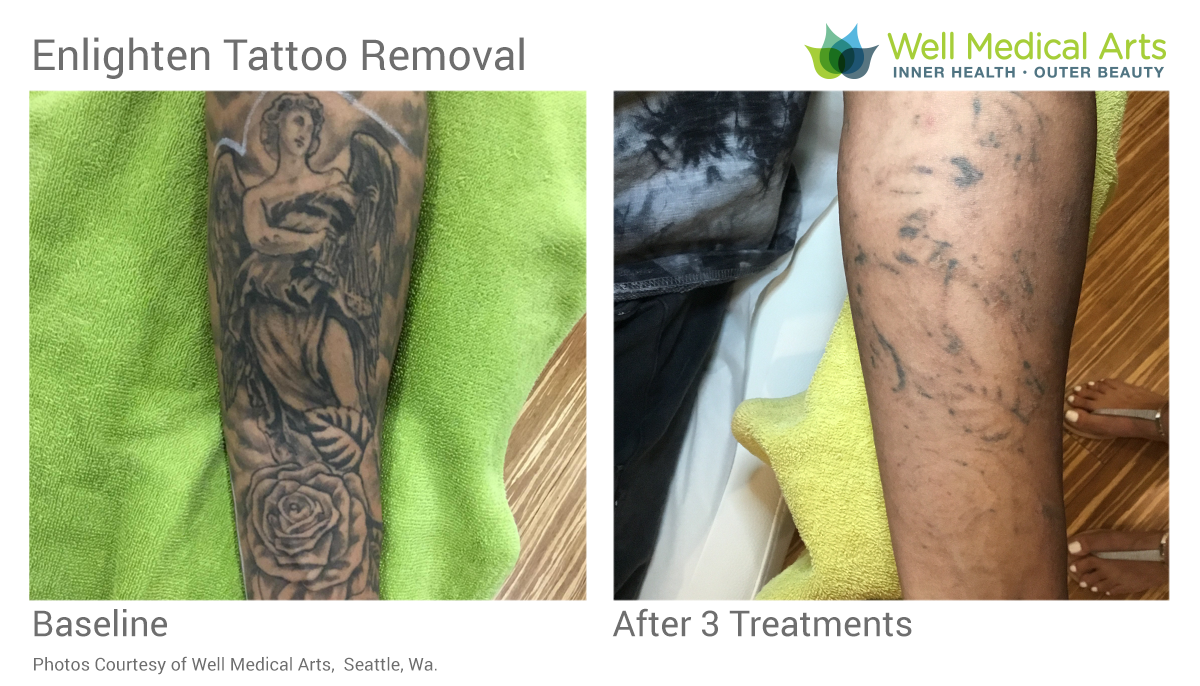 Laser Tattoo Removal before and after for Lightening prior to a Coverup in Seattle at Well Medical Arts tx1. Learn more about the Tattoo Removal process at http://wellmedicalarts.com/seattle-tattoo-removal/ or call one of our patient concierge team to schedule a complimentary consultation.