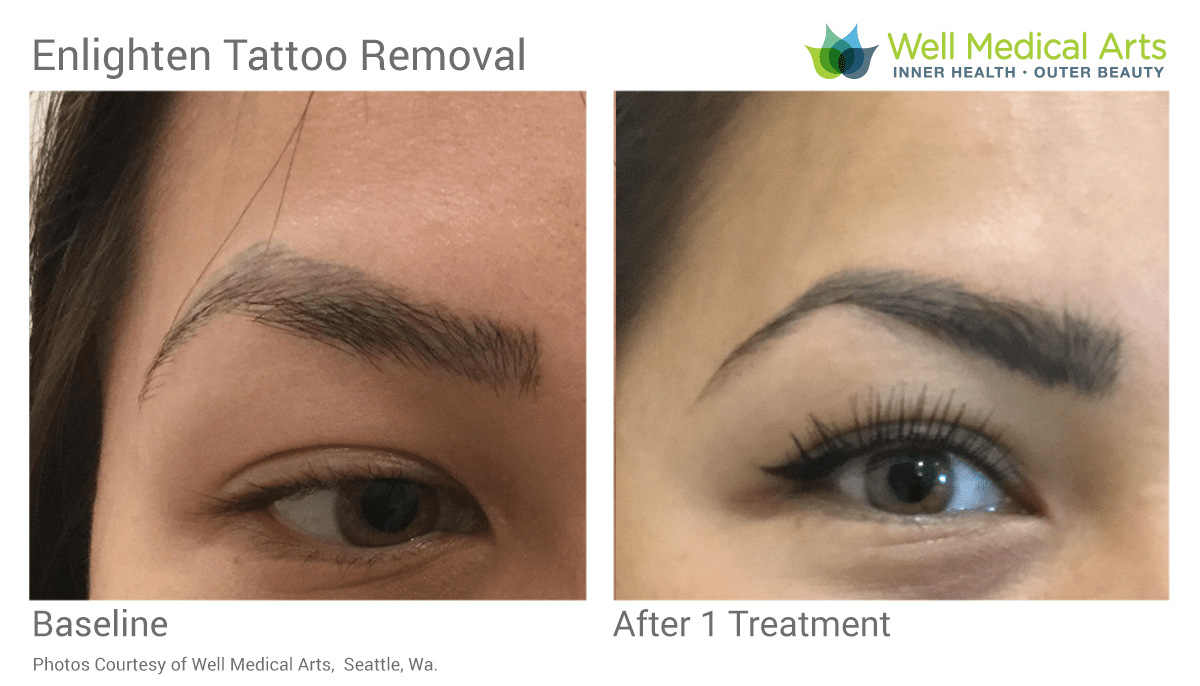 Microblading removal before and after in Seattle at Well Medical Arts after 1 treatment