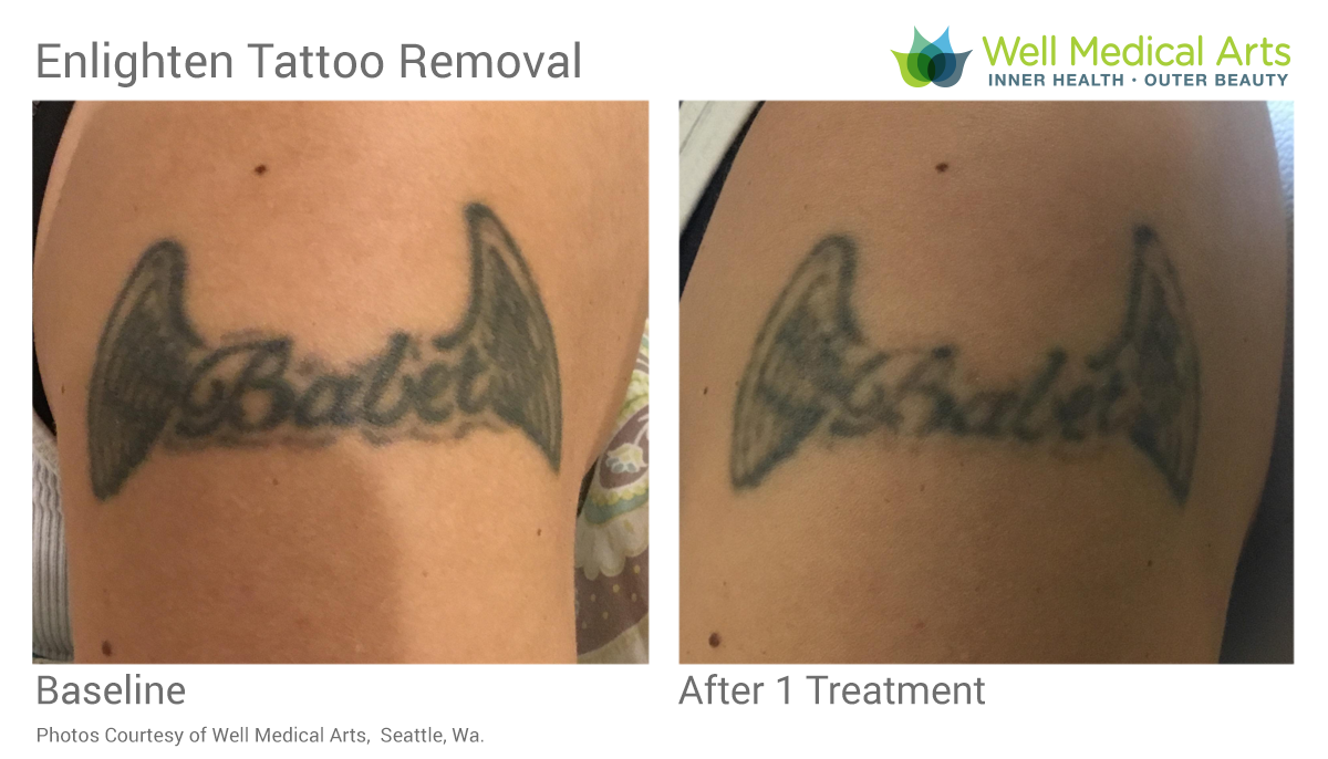 Tattoo Removal Cover Up Before And After 1 Treatment