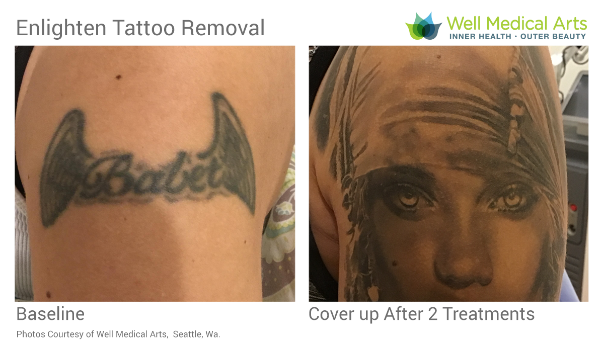 Tattoo Removal Cover Up Before And After BV-TX2