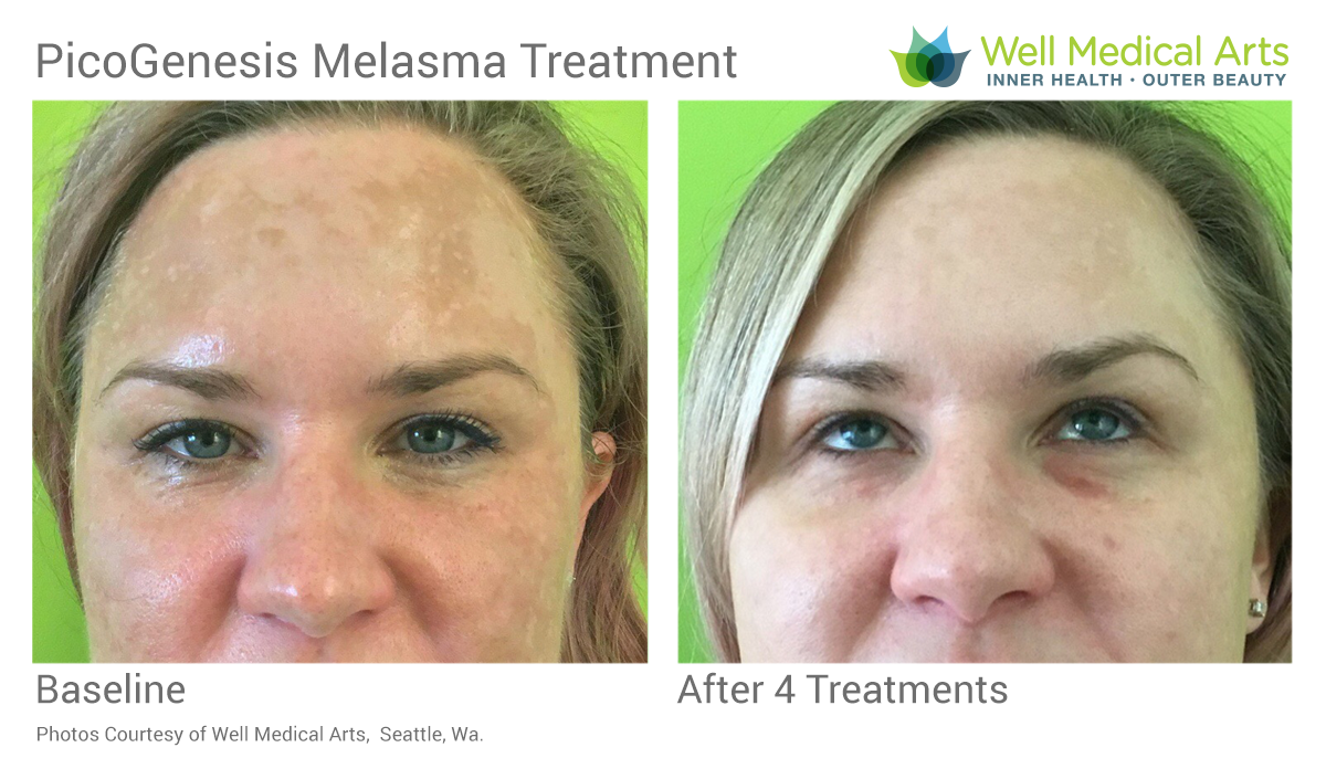 PicoGenesis For Melasma Before And After 4 Treatments