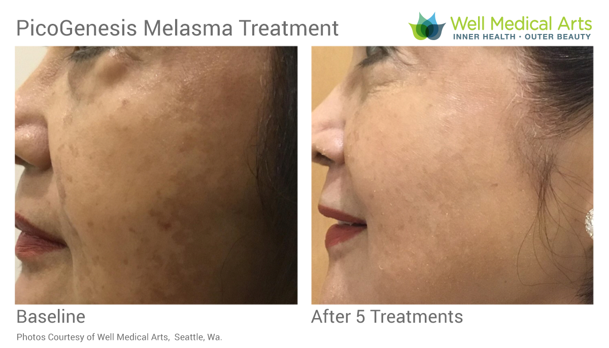Melasma Treatment Before And After 5 Treatments