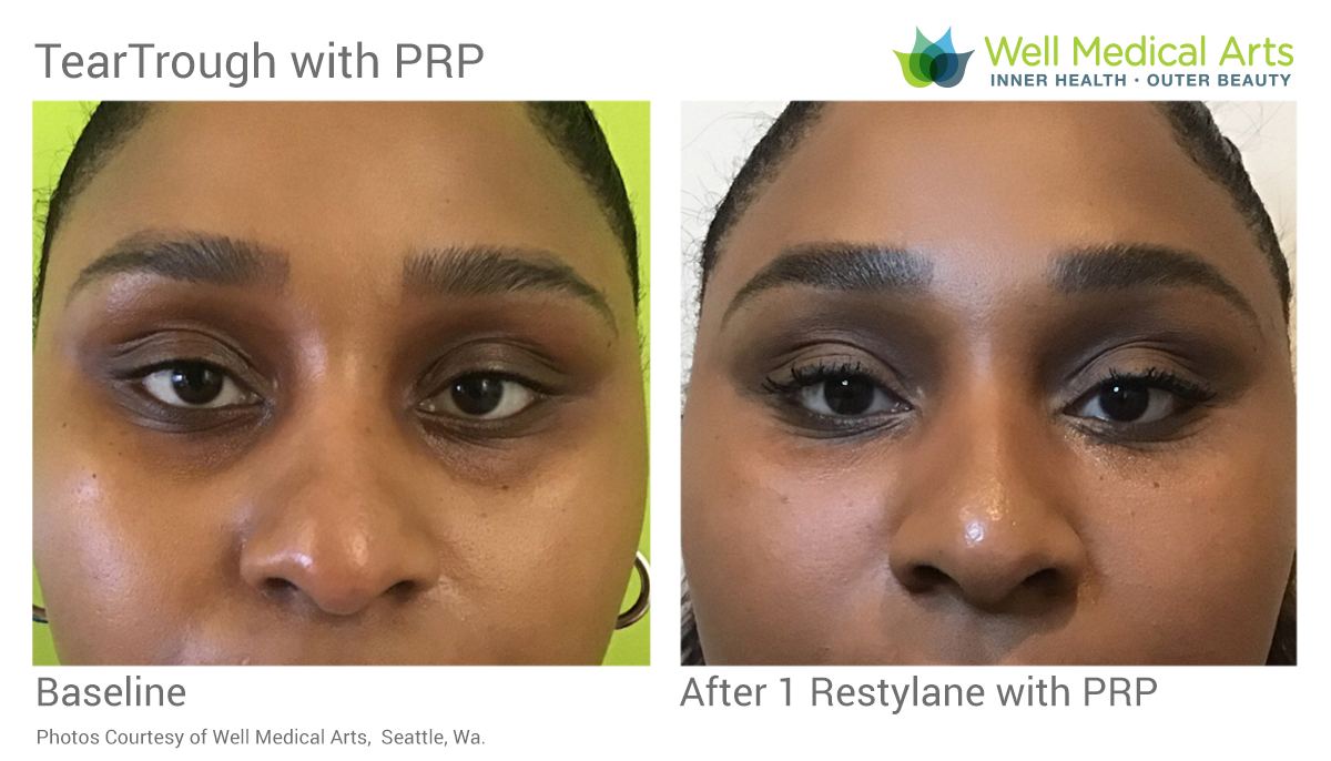 Tear Trough With Restylane & PRP Before And After