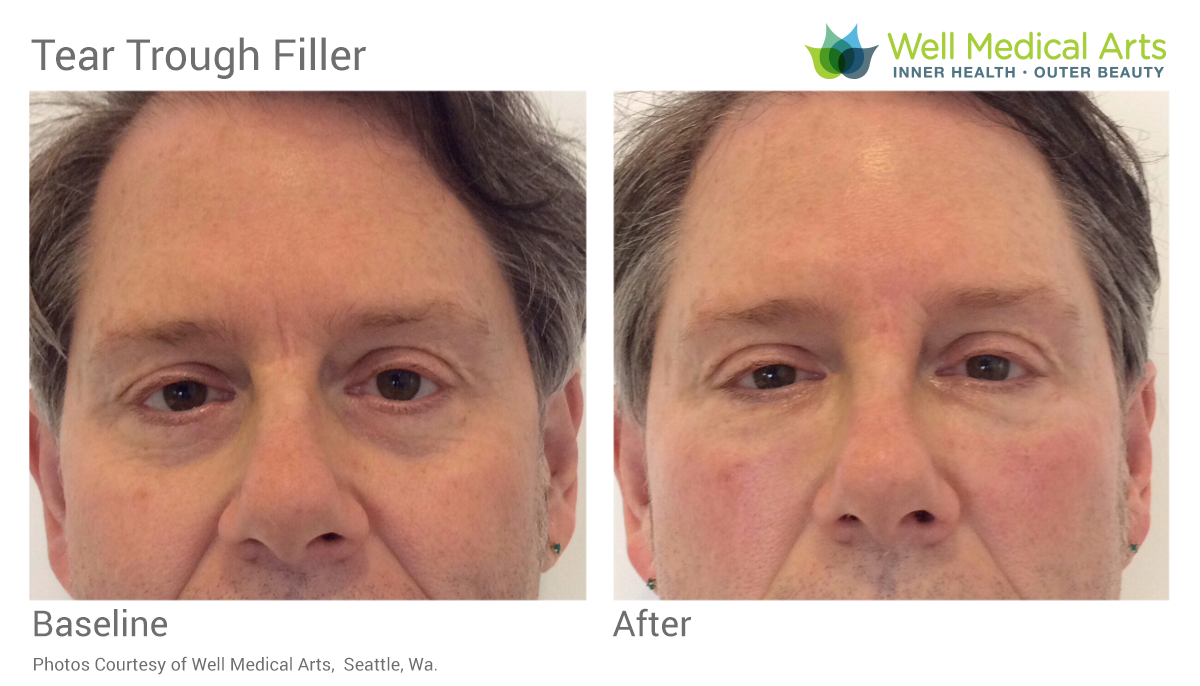 Tear Trough Filler Before And After In Seattle At Well Medical Arts