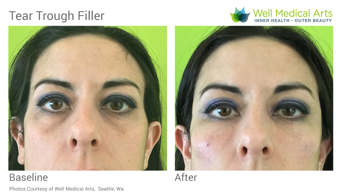 Tear Trough Filler Before And After In Seattle At Well Medical Arts. Learn More About Tear Trough Filler At Tear Trough Treatment (Black Bags Under Eyes)