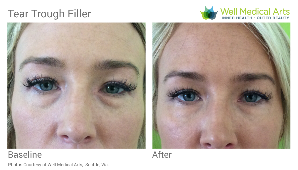 Under Eye Filler Before And After At Well Medical Arts In Seattle