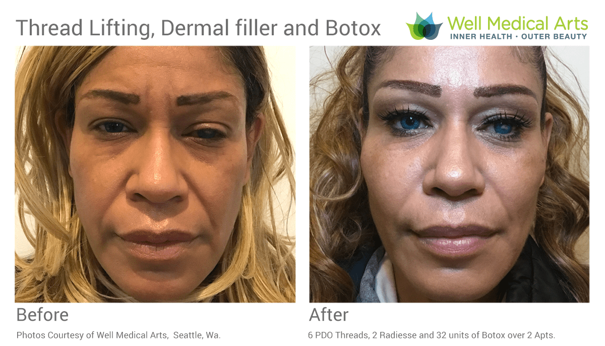 A PDO Thread Lifting Treatment In Combination With Dermal Fillers And Botox Can Dramatically Improve Your Appearance And Refresh Your Look.