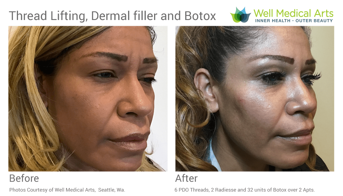 Combination Therapy With Radiesse, PDO Threads And Botox Before And After Oblique