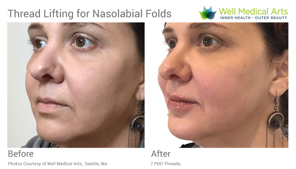 A PDO Thread Lift Treatment Can Dramatically Improve The Appearance Of Nasolabial Folds Instantly With Minimal Downtime. Lear More At Thread Lifting Then Call 206-935-5689 To Schedule Your Appointment.
