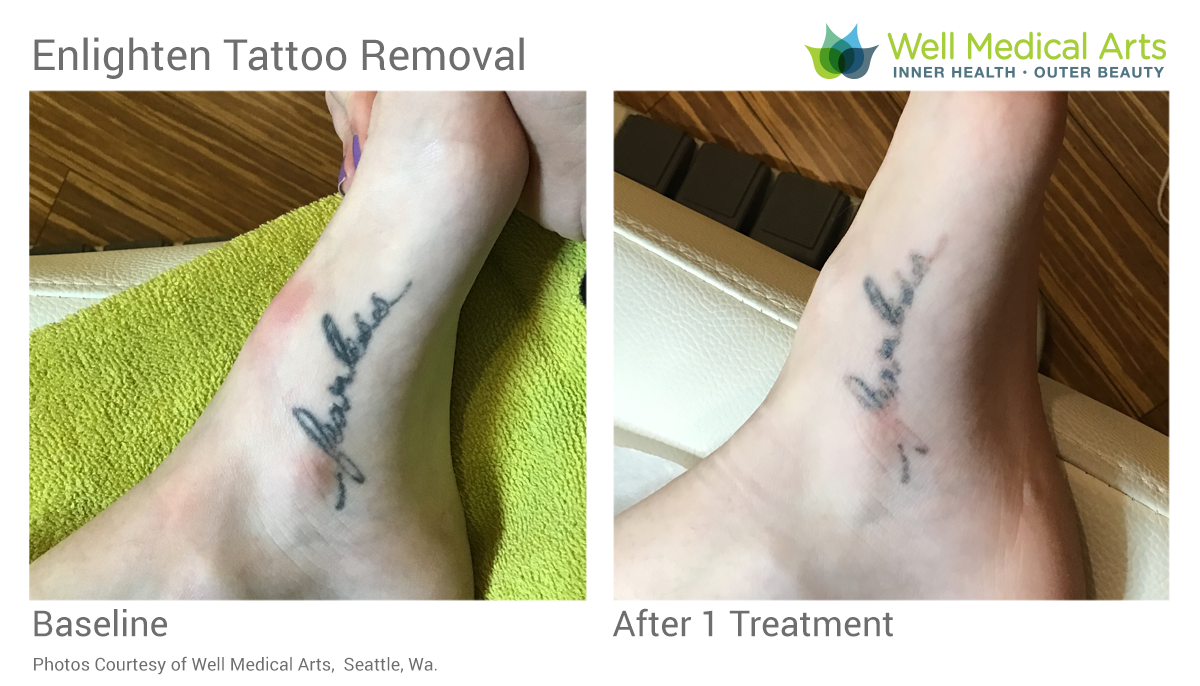 Before And After 1 Treatment Using The Cutera Enlighten With Picosecond Technology