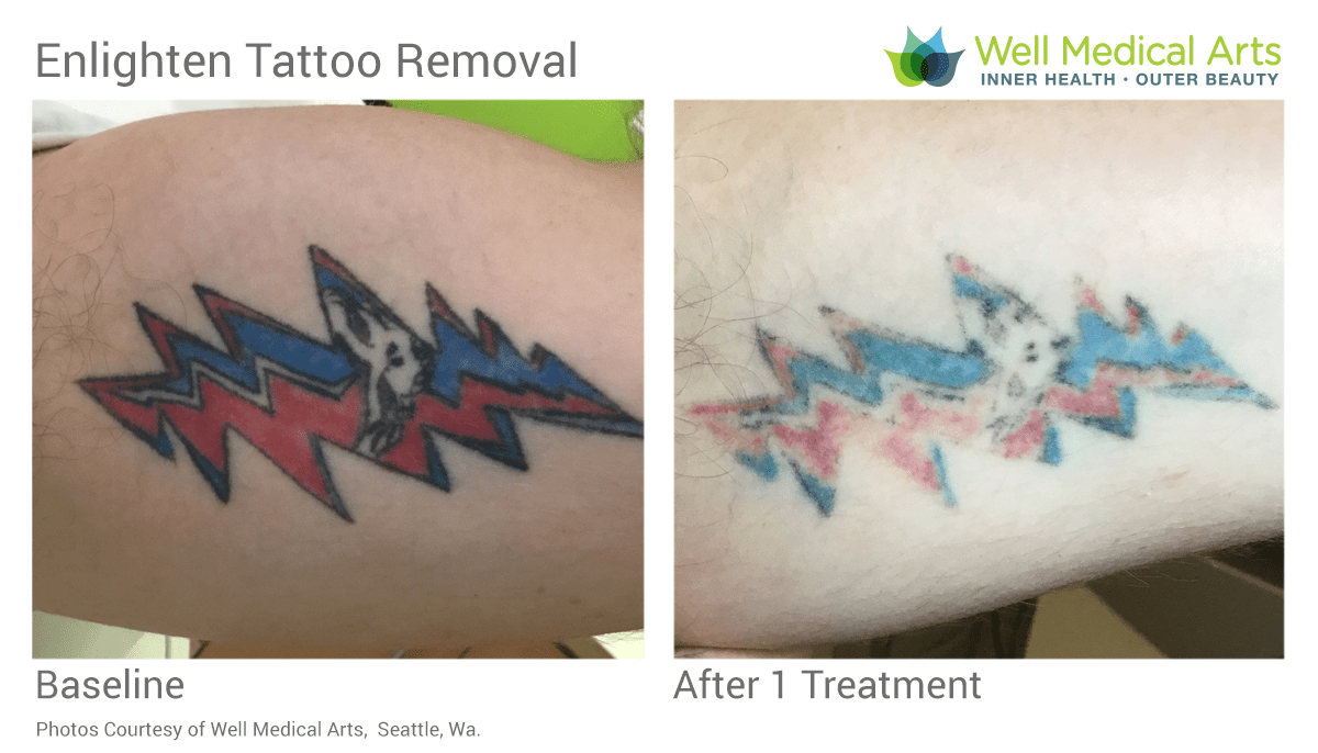 Lightening A Tattoo For A Coverup. This Is 8 Weeks Post 1 Treatment With The Cutera Enlighten At Well Medical Arts In Seattle.