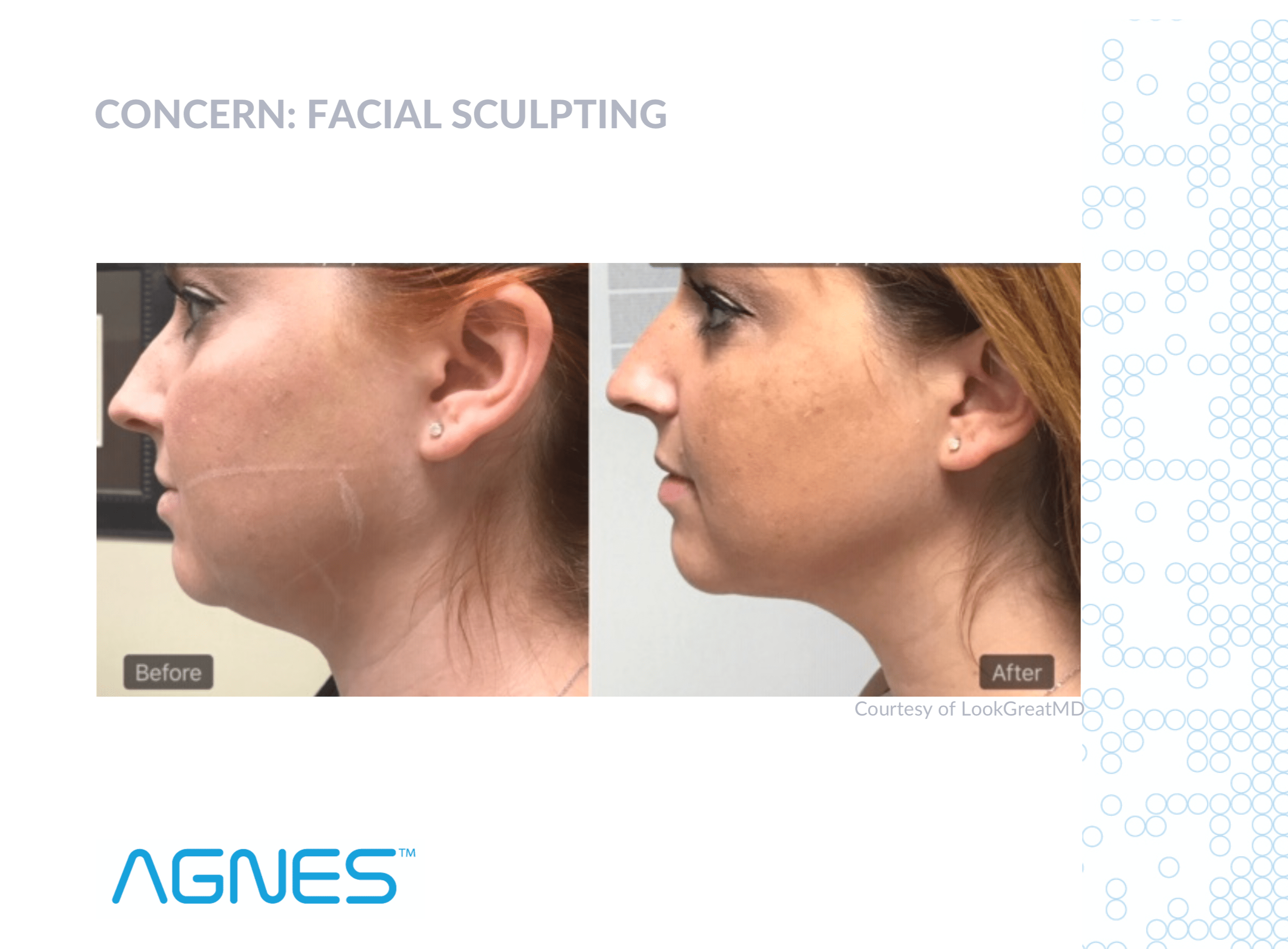 Agnes RF Microneedling - Non-Surgical Solutions. Tightens, Smooths & Sculpts. Unmatched Precision Targeting To Treat Problem Areas.