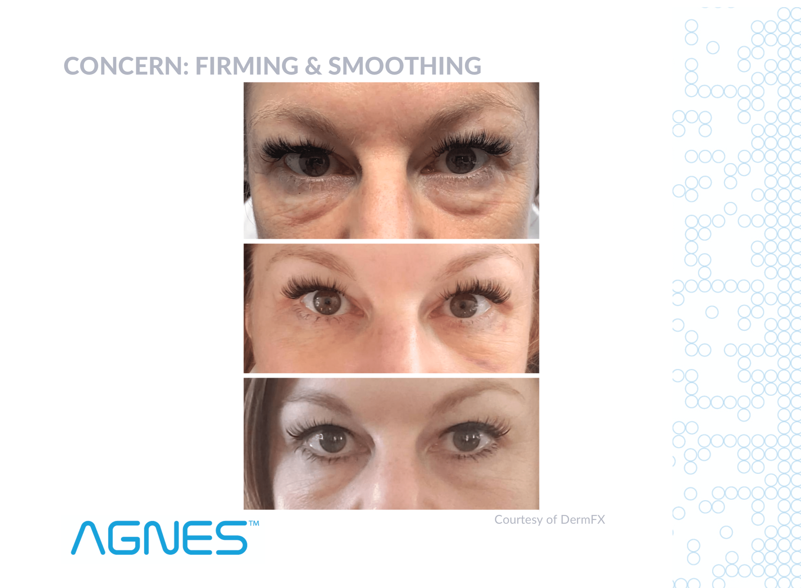 Firming And Smoothing Under Eyes With The Agnes RF In Seattle At Well Medical Arts