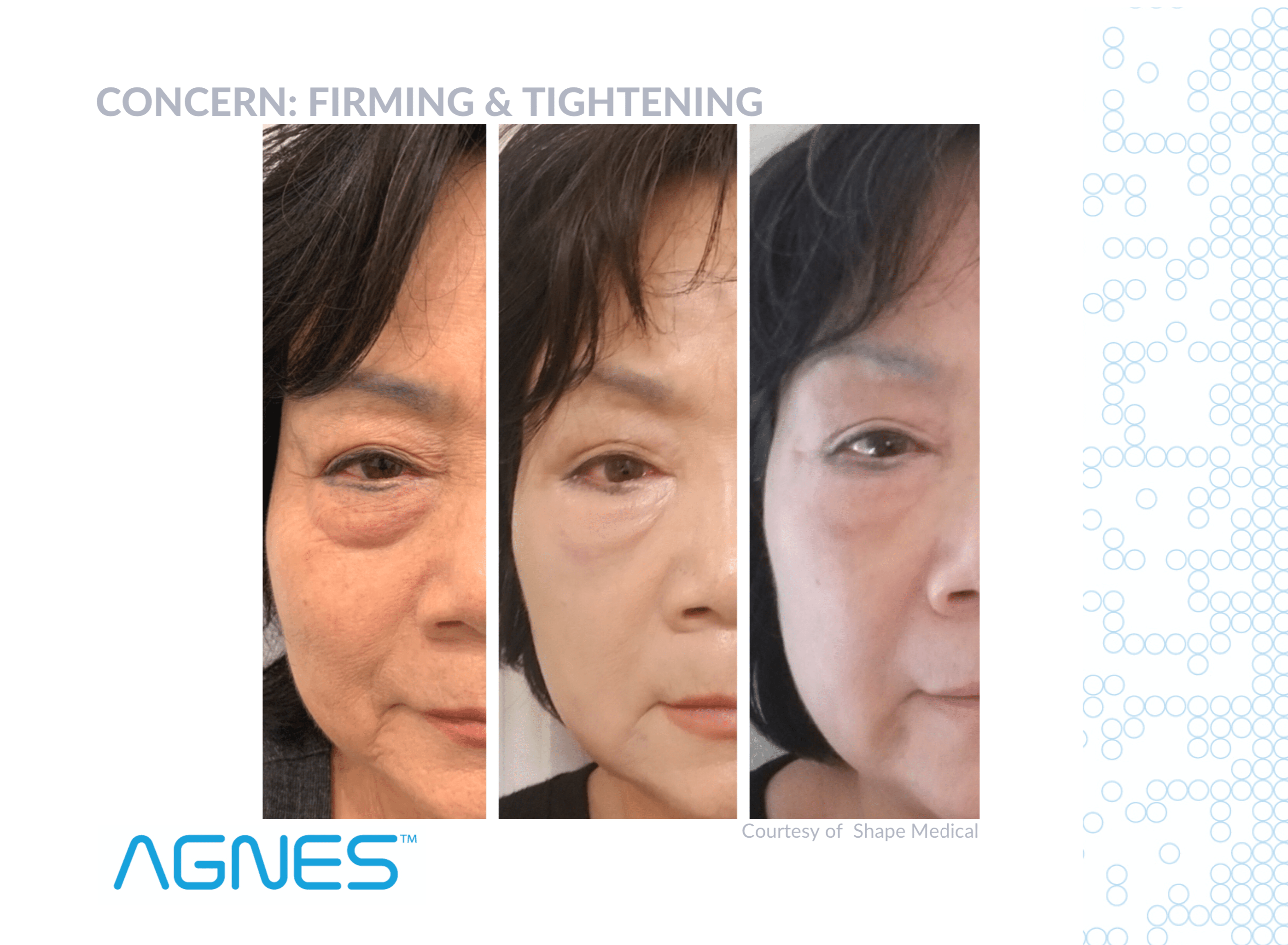 AGNES Before And After - Firming And Tightening Of Eye Bags