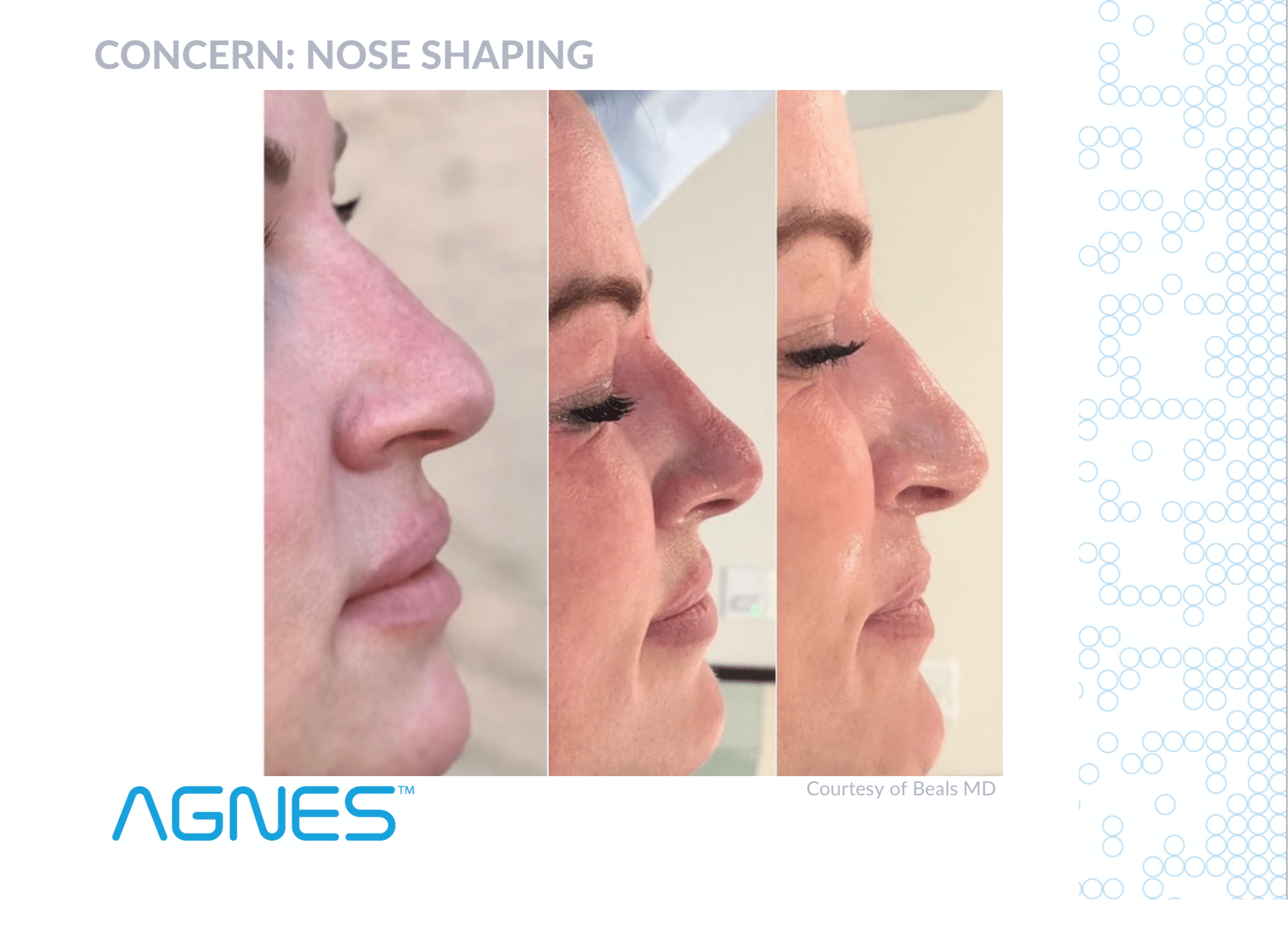 AGNES RF Before And After - Nose Shaping